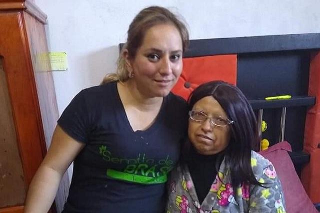 Buscan donadores de cabello para personas con cáncer en Teziutlán