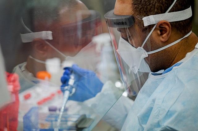 Identifican proteína que agrava casos de Covid en hombres