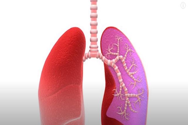 5 alimentos que pueden afectar a tus pulmones