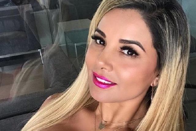 Aleida Núñez muestra fotos de terrible quemadura que sufrió