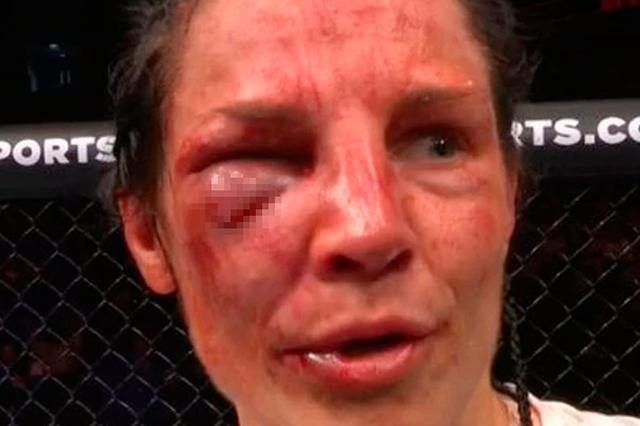 Desfiguran el rostro a peleadora de la UFC