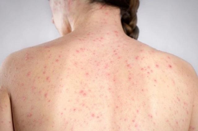 Sarampión, la enfermedad que es mucho más contagiosa que el coronavirus