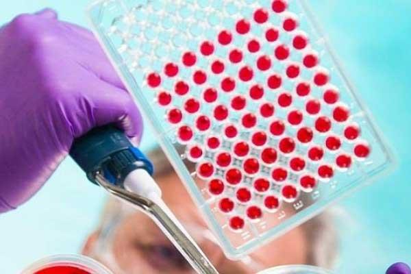 Desarrollan test de sangre que predice el riesgo de desarrollar alzheimer