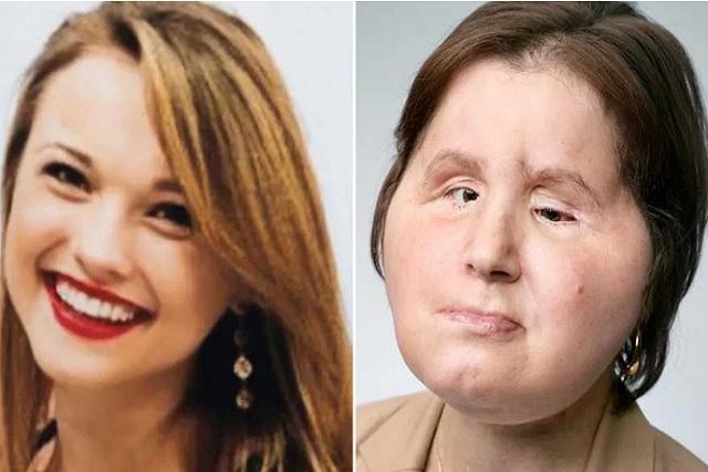 Esta chica recibió un trasplante de rostro y así luce ahora