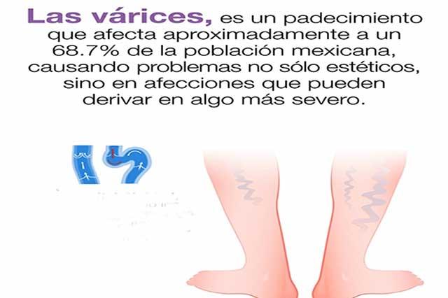 Prevención, mejor remedio para varices
