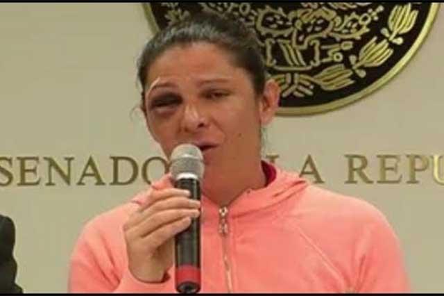 Difunden otra versión de la golpiza a Ana Gabriela Guevara