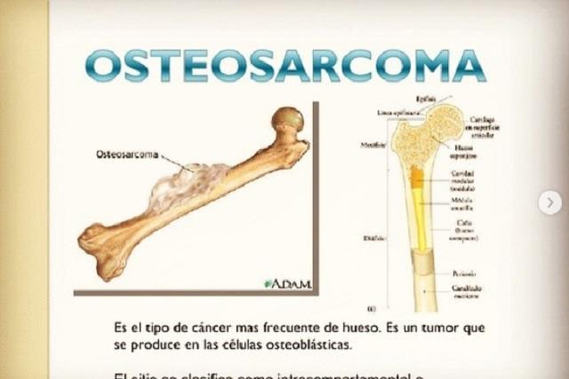 ¿Qué es osteosarcoma, enfermedad por la que falleció Xana?