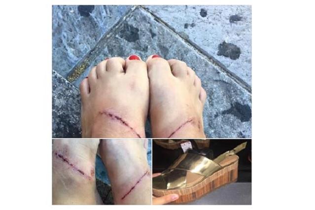Zara retira modelo de zapatos que dañaron los pies de una mujer